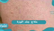 علاج جلد الوزة.. الأسباب وطرق العلاج