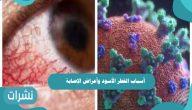 أسباب الفطر الأسود وأعراض الإصابة