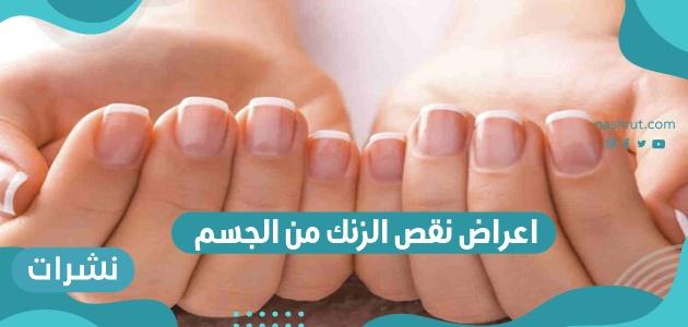 اعراض نقص الزنك من الجسم