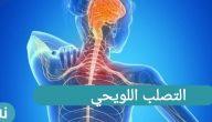 التصلب اللويحي متى يظهر وما هي أعراضه؟
