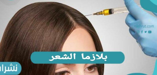 بلازما الشعر… الفوائد والأضرار ونصائح ما بعد الحقن