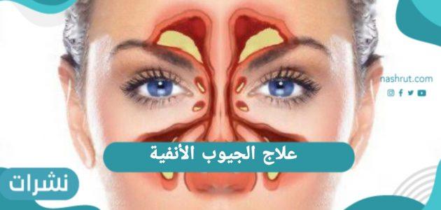 علاج الجيوب الأنفية… الفرق بين التهاب الجيوب التحسسي و الناتج عن العدوى