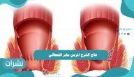 علاج الشرخ المزمن جابر القحطاني