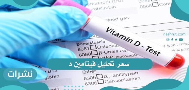 سعر تحليل فيتامين د   أسعار التحاليل بالمستشفيات الحكومية او المعامل