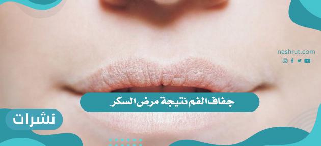جفاف الفم ومرض السكر