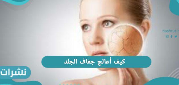 كيف أعالج جفاف الجلد