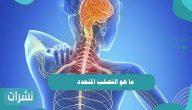 ما هو التصلب المتعدد أسبابه وأعراضه وكيفية علاجه