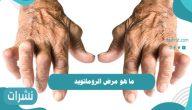 ما هو مرض الروماتويد وأسبابه وأعراضه وكيفية علاجه