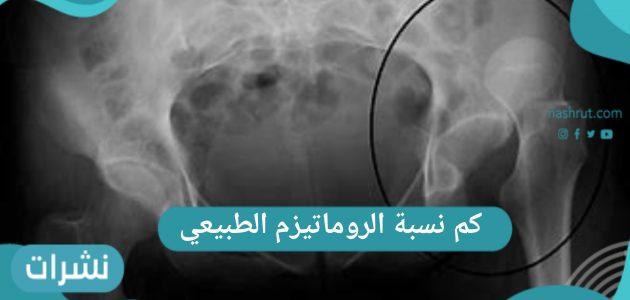 كم نسبة الروماتيزم الطبيعي في جسم الإنسان