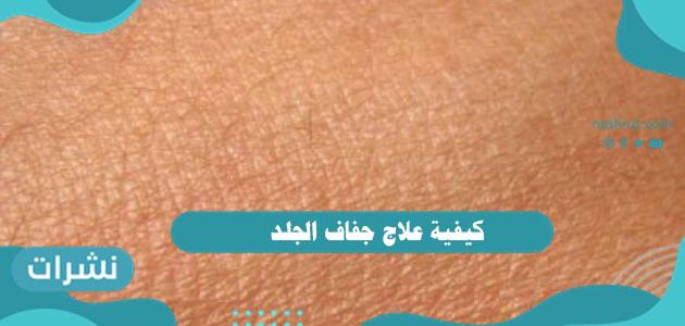 كيفية علاج جفاف الجلد بالتفصيل